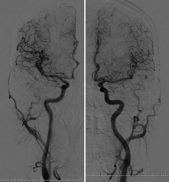 The cerebral circulation and cerebrovascular disease I: Anatomy ...