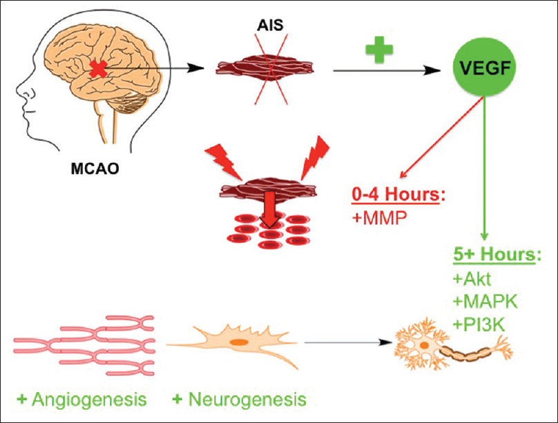Figure 1: The temporal effects of vascular endothelial growth factor in acute ischemic stroke. In middle cerebral artery occlusion models of acute ischemic stroke there are increases in vascular endothelial growth factor levels. In the first 4 h after acute ischemic stroke, there is vascular endothelial growth factor-mediated activation of matrix metalloproteinases causing cerebral edema and localized inflammation, thus damaging neurons and nervous system tissue. After this acute inflammatory phase, the positive effects of vascular endothelial growth factor signaling to its downstream target proteins, such as Akt, mitogen-activated protein kinase, and phosphatidyl-inositol-3-kinase, include angiogenesis and neurogenesis
